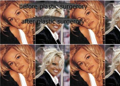 PAMELA   ANDERSON - before and after
