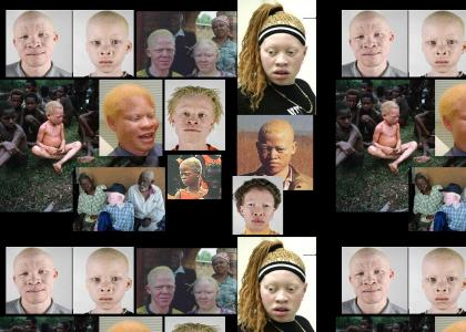 White albino Africans