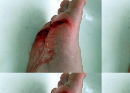 My drummers bloody foot