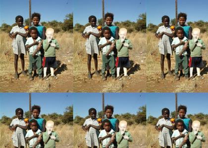 African albino boy
