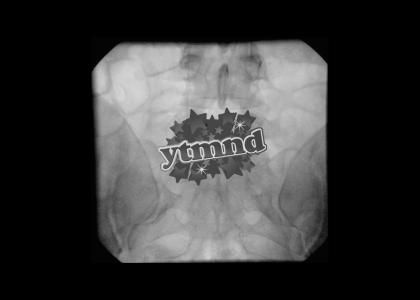 I ♥ YTMND