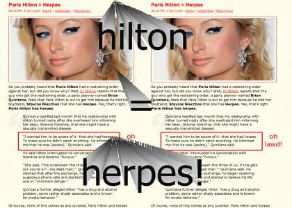Paris Hilton = Herpes!