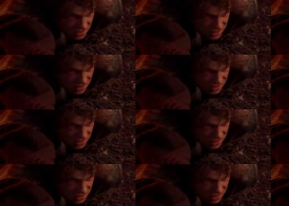 Anakin is Burning in the sunlight
