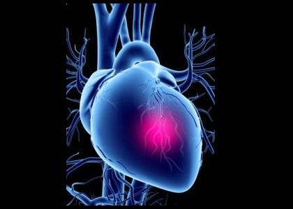 I'm having chest pain! (remix)